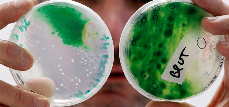 All about BSc Microbiology